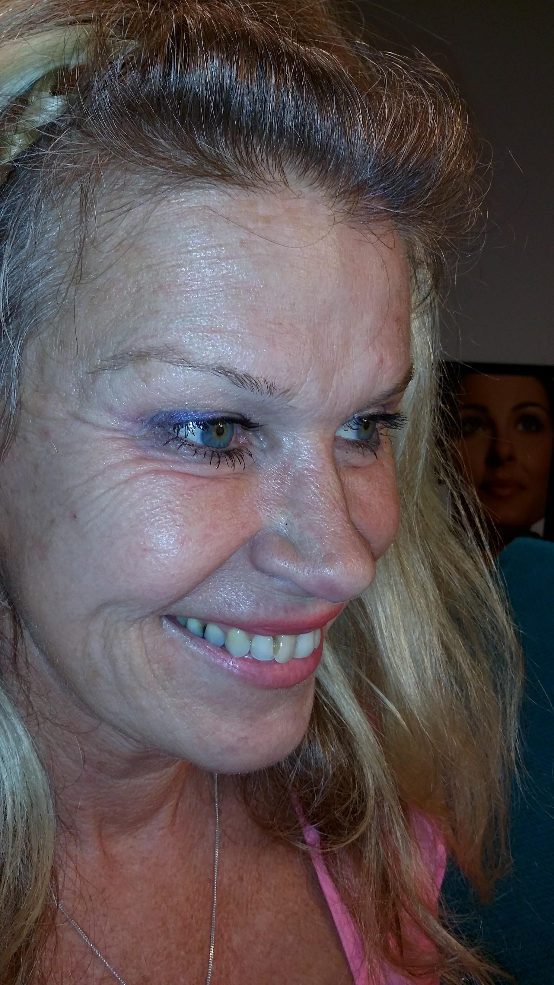 hängande ögonlock operation pris